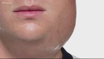 Several LSU students have mumps