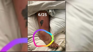 Woman Almost Loses Leg After Nightmare Pedicure