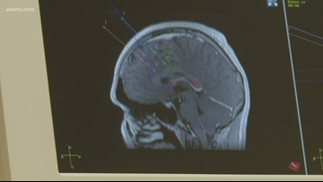 New surgical robot helps stop Louisiana man's epileptic seizures
