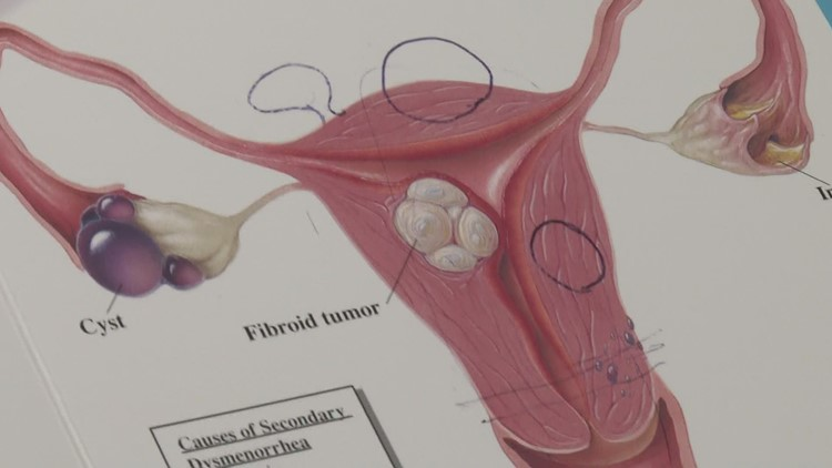 How to know if you have fibroids