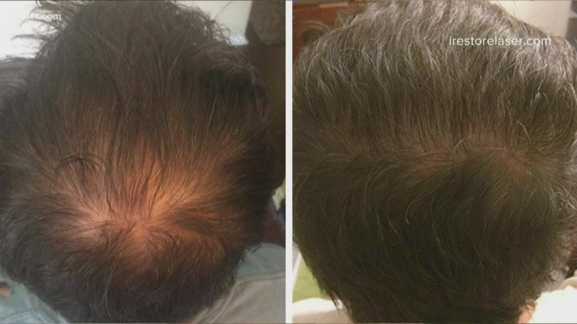Do Led Devices Help Regrow Thinning Hair Wwltv Com