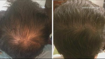 Do LED devices help regrow thinning hair?